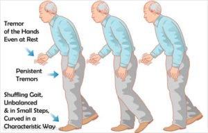 Symptoms-of-Parkinsons-Disease